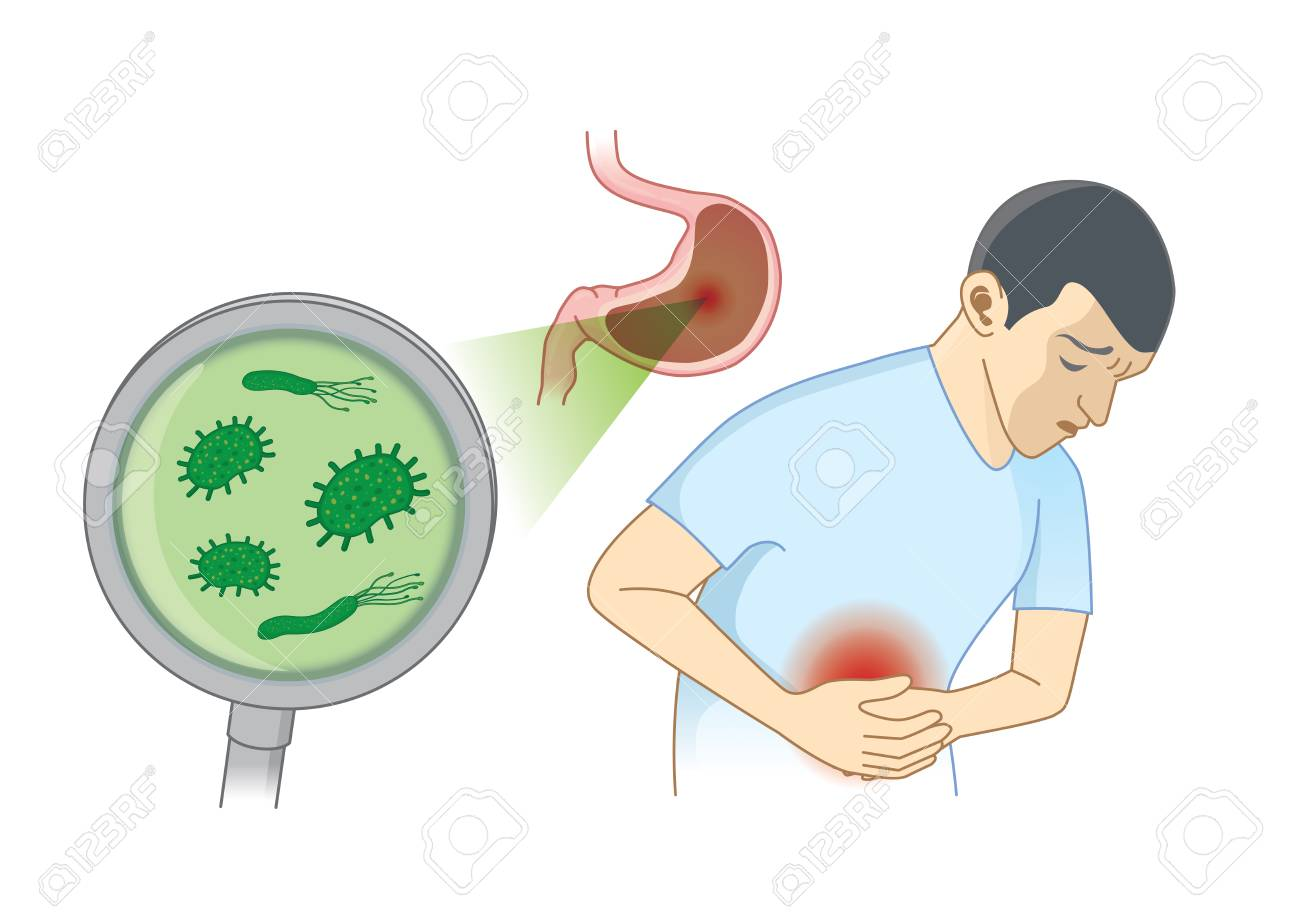 Man Suffering from stomach ache symptom because bacterial. Concept Illustration about hygiene and health. - 110363567