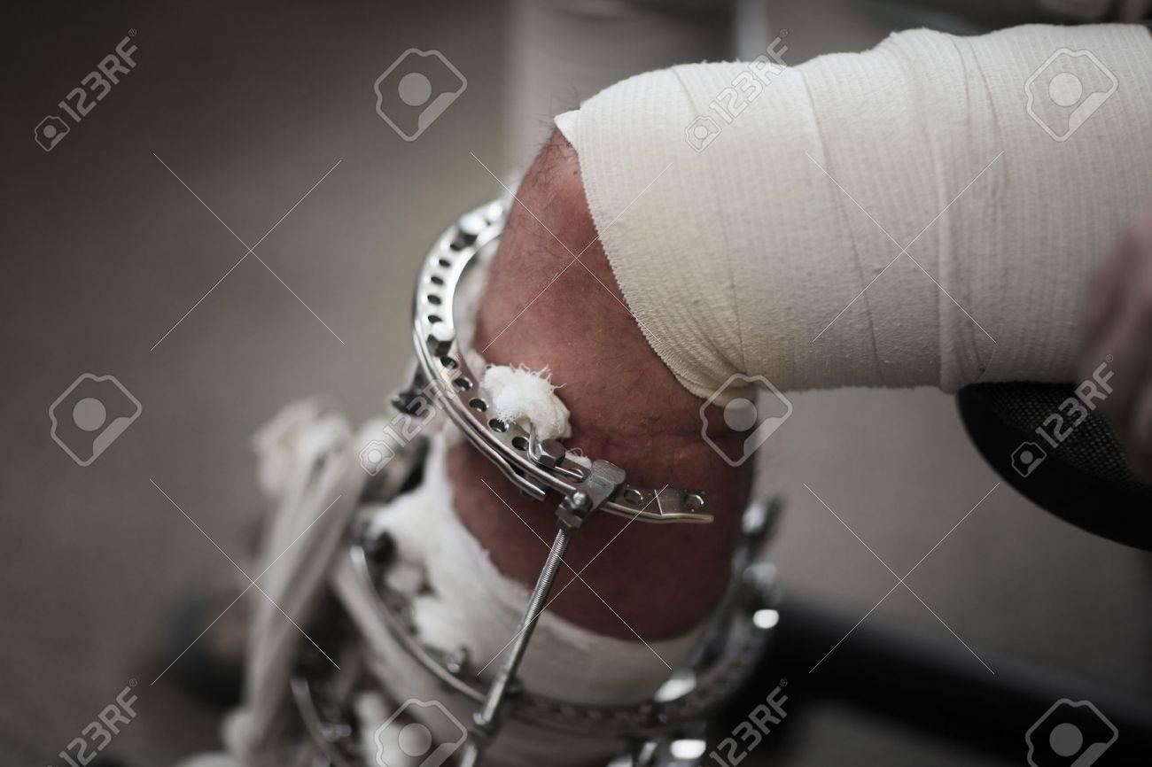 Broken leg in metal support device. Closeup, shallow DOF. Stock Photo - 9031949