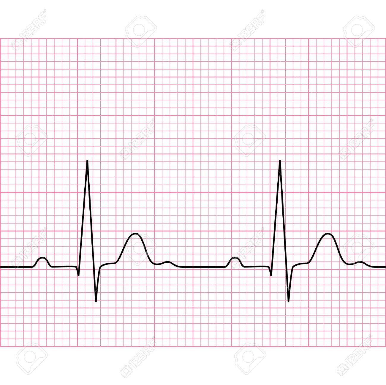 Illustration of medical electrocardiogram - ECG on chart paper, graph of heart rhythm, 2d illustration, vector, eps 8 - 32942824