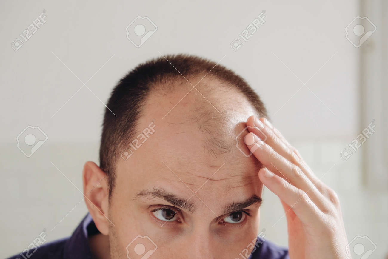 When do young to what balding What Should