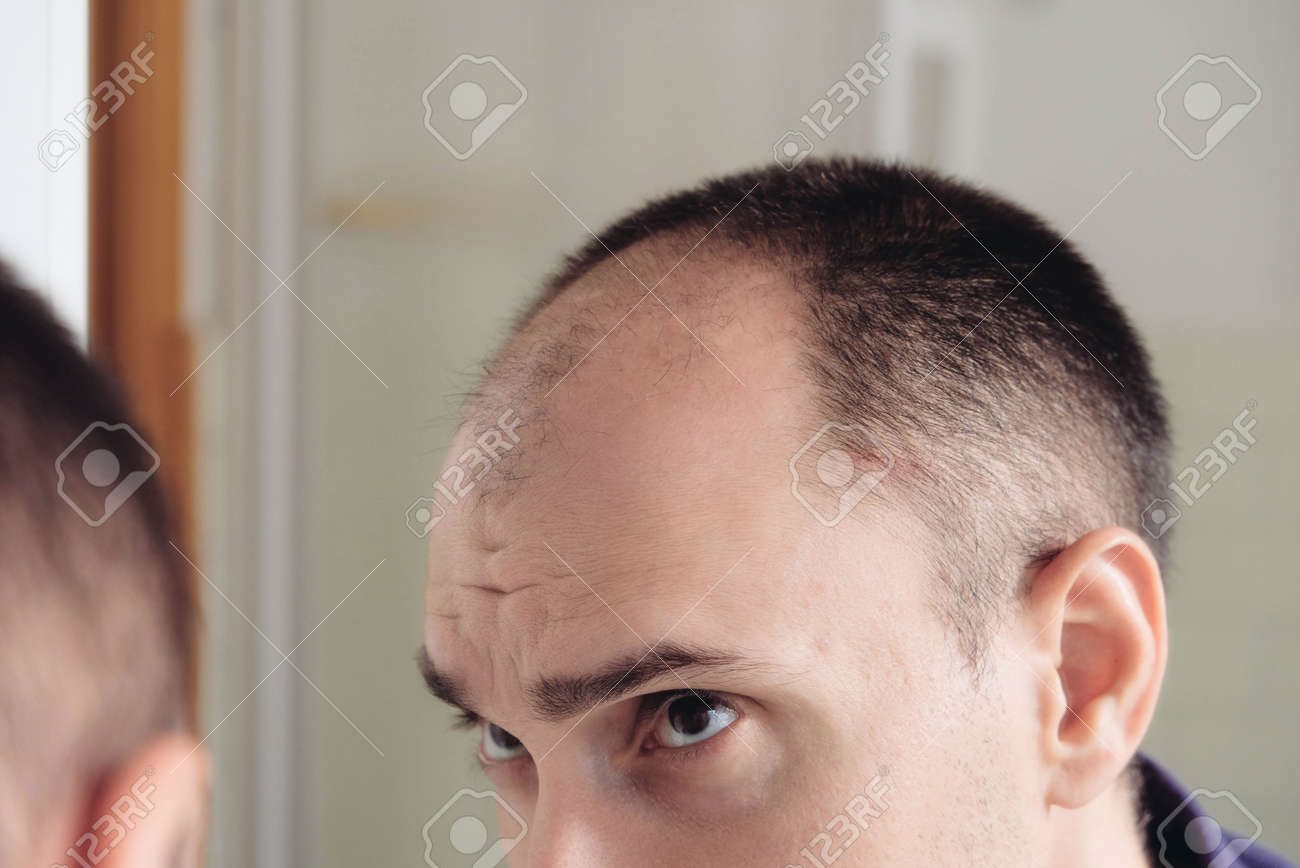 When what young balding do to Balding Causes,