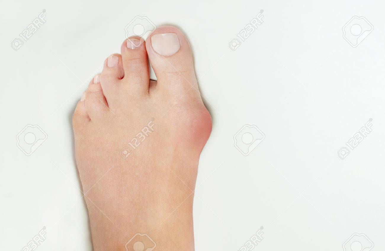 Hallux Valgus, Bunion In Woman Foot On White Background Stock Photo ...