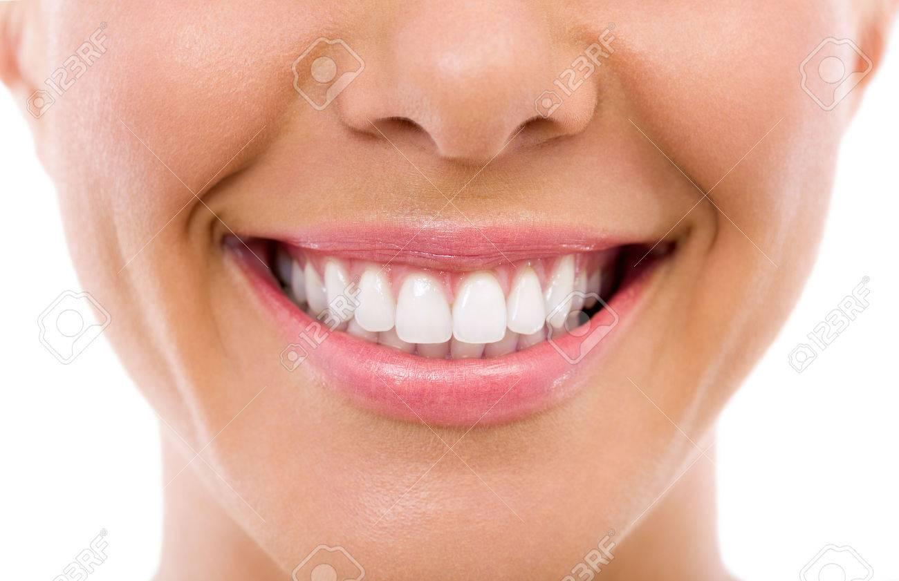 Woman smile, teeth whitening, dental care - 31581736