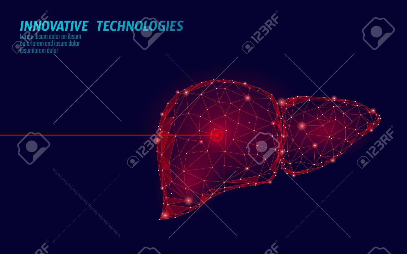 Human liver laser surgery operation low poly. Medicine disease drug treatment painful area. Red triangles polygonal 3D render shape. Pharmacy hepatitis cancer template vector illustration - 117102966