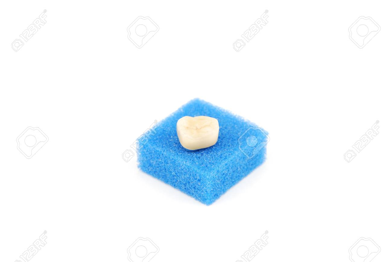 bonded crown non precious of lower right six tooth (on a blue sponge) Stock Photo - 6381197