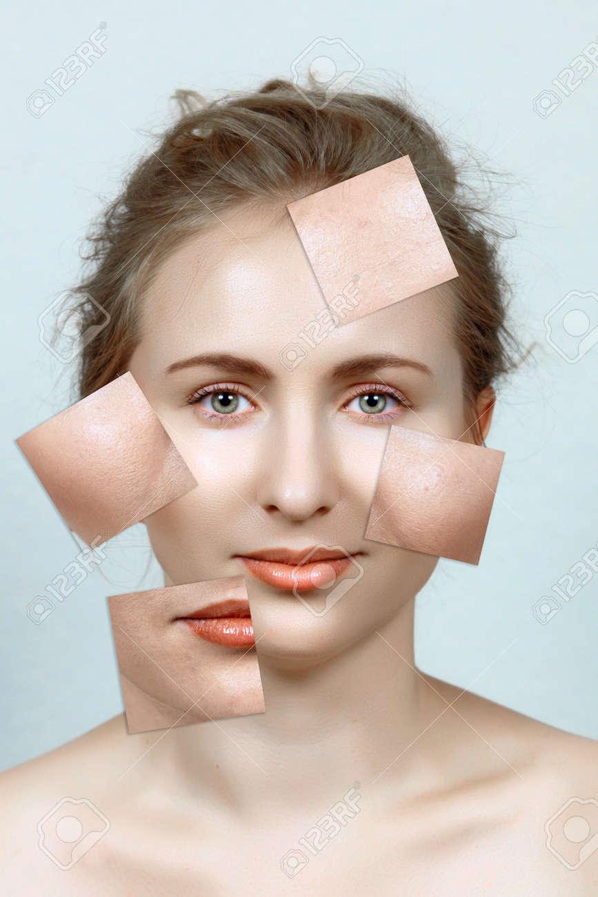 belle femme avec la peau avant et après: les problèmes de peau à imperfections et le teint clair. Banque d'images - 12470161