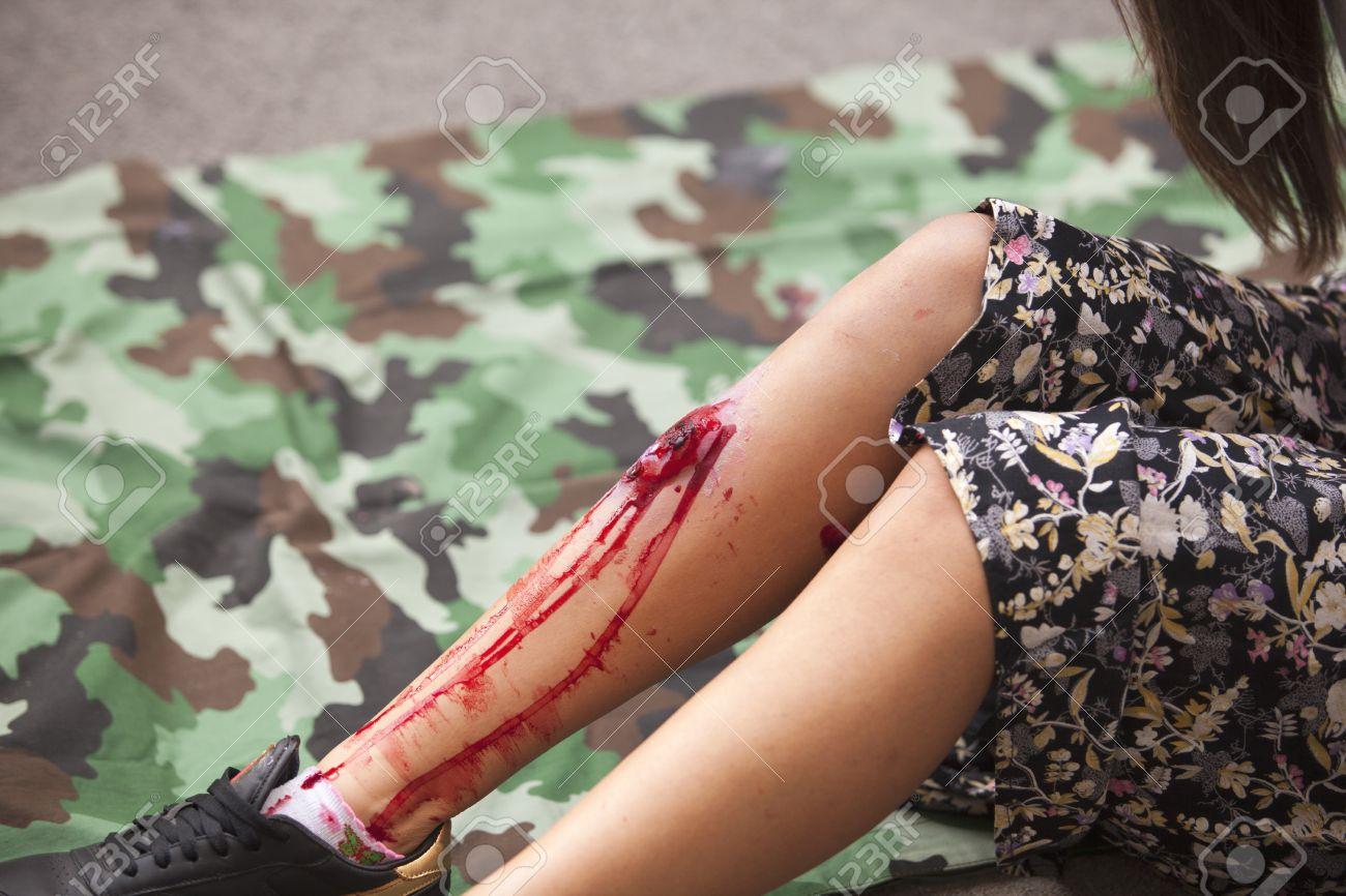 Mädchen Mit Beinverletzung. Unfall Verletzungen Simulation ...