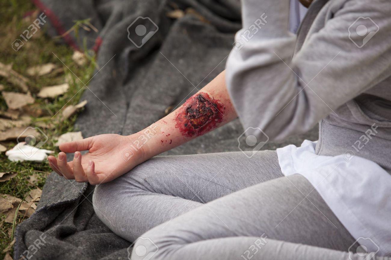 Schweren Verletzungen Auf Mädchen Den Arm Lizenzfreie Fotos, Bilder ...