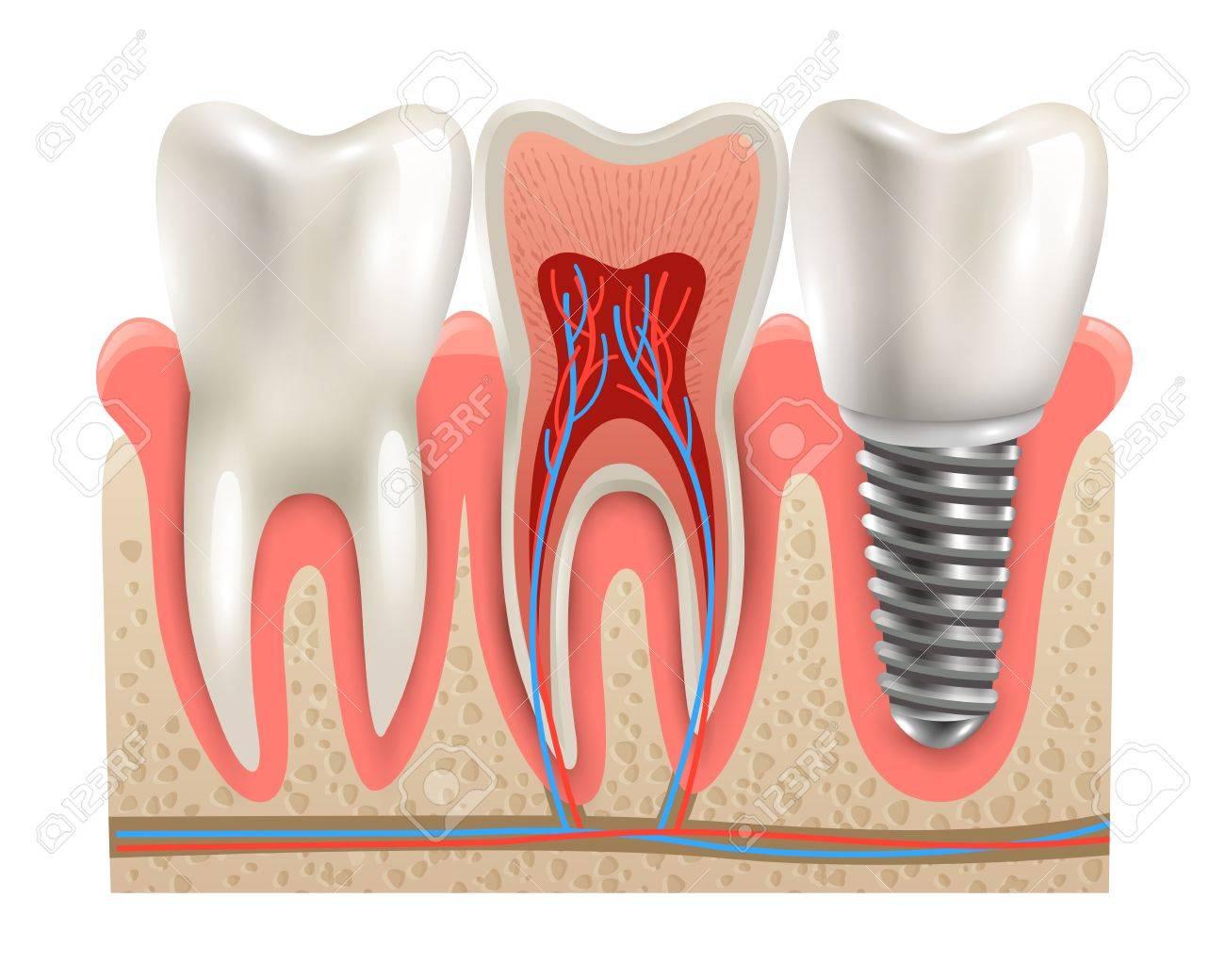 Implante Dental Y Diente Real Anatomía Primer Plano Cortadas Sección ...