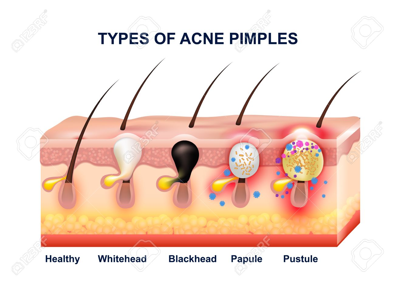 Colored Skin Acne Anatomy Composition With Types Of Acne Pimples ...