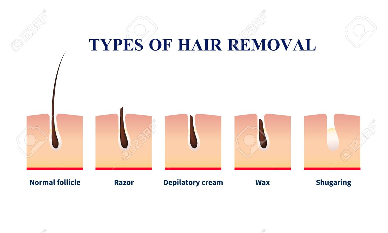 Normal Follicle And Types Of Hair Removal With Help Of Razor,.. Royalty  Free Cliparts, Vectors, And Stock Illustration. Image 97713117.123RF.com
