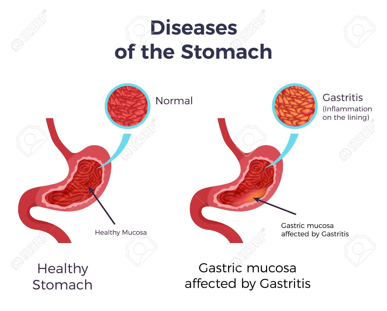 Human normal stomach compared to gastritis affected swollen inflamed mucosa lining flat set infographic poster vector illustration - 108292399