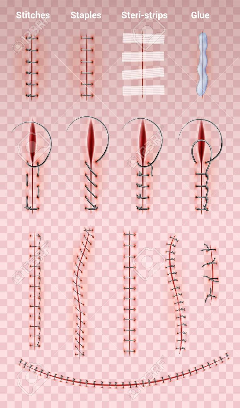 Surgical Sutures Stock Illustrations – 27 Surgical Sutures Stock  Illustrations, Vectors & Clipart - Dreamstime