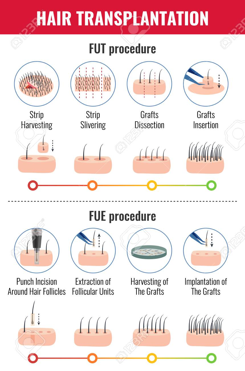 Methods of hair transplantation with stages of procedure infographics on white background vector illustration - 113266276