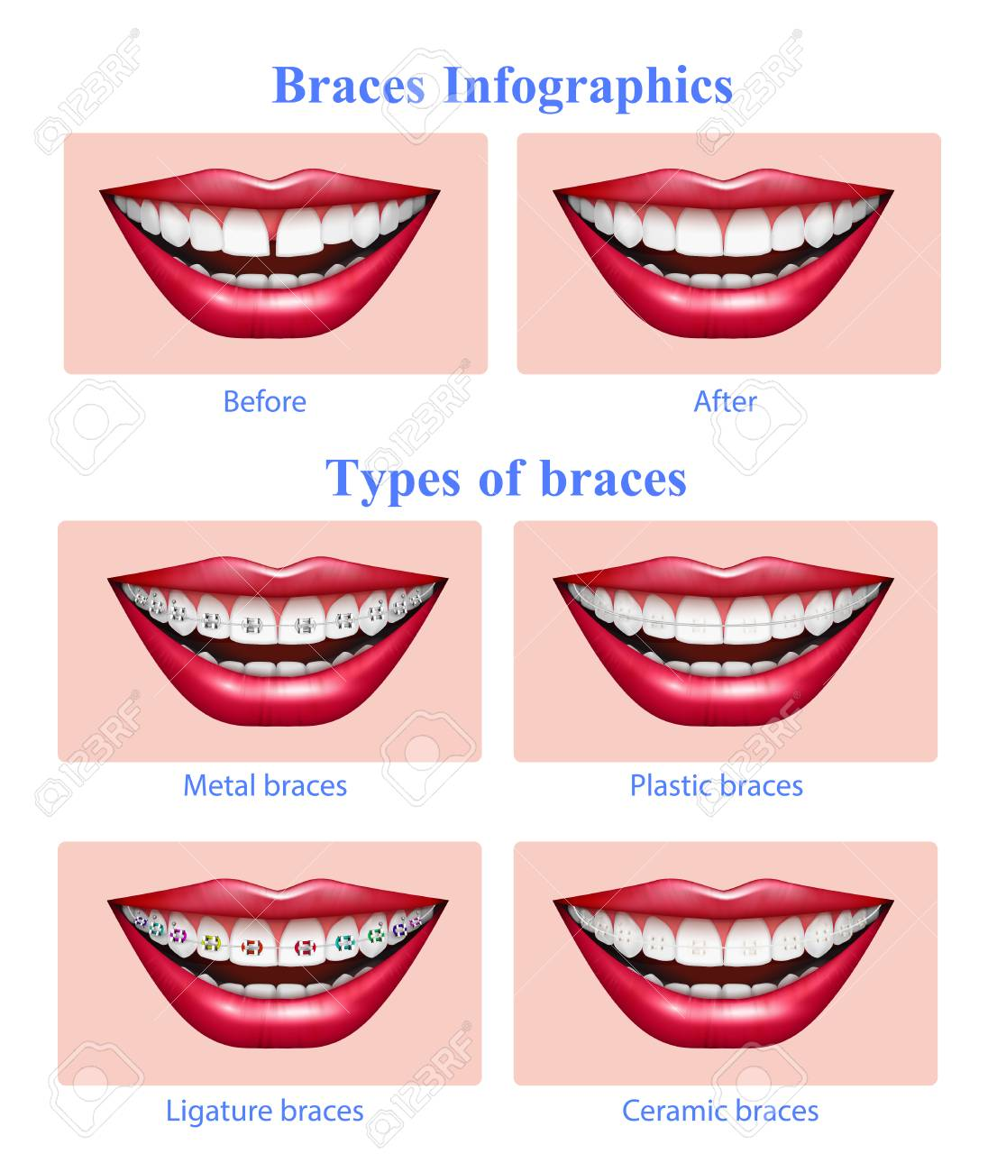 Opened mouth with red glossy lips showing metal plastic ceramic teeth braces types realistic infographic vector illustration - 113845028