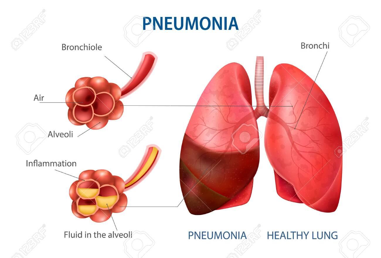 Pneumonia realistic set with healthy lung symbols vector illustration - 150814365