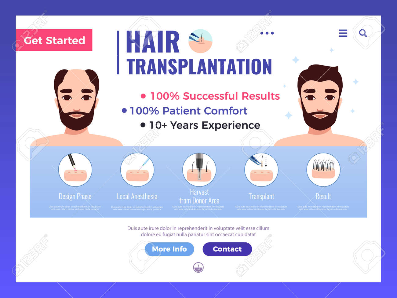 Hair transplantation web banner with infographics advertising and interface elements on white background vector illustration - 166490205