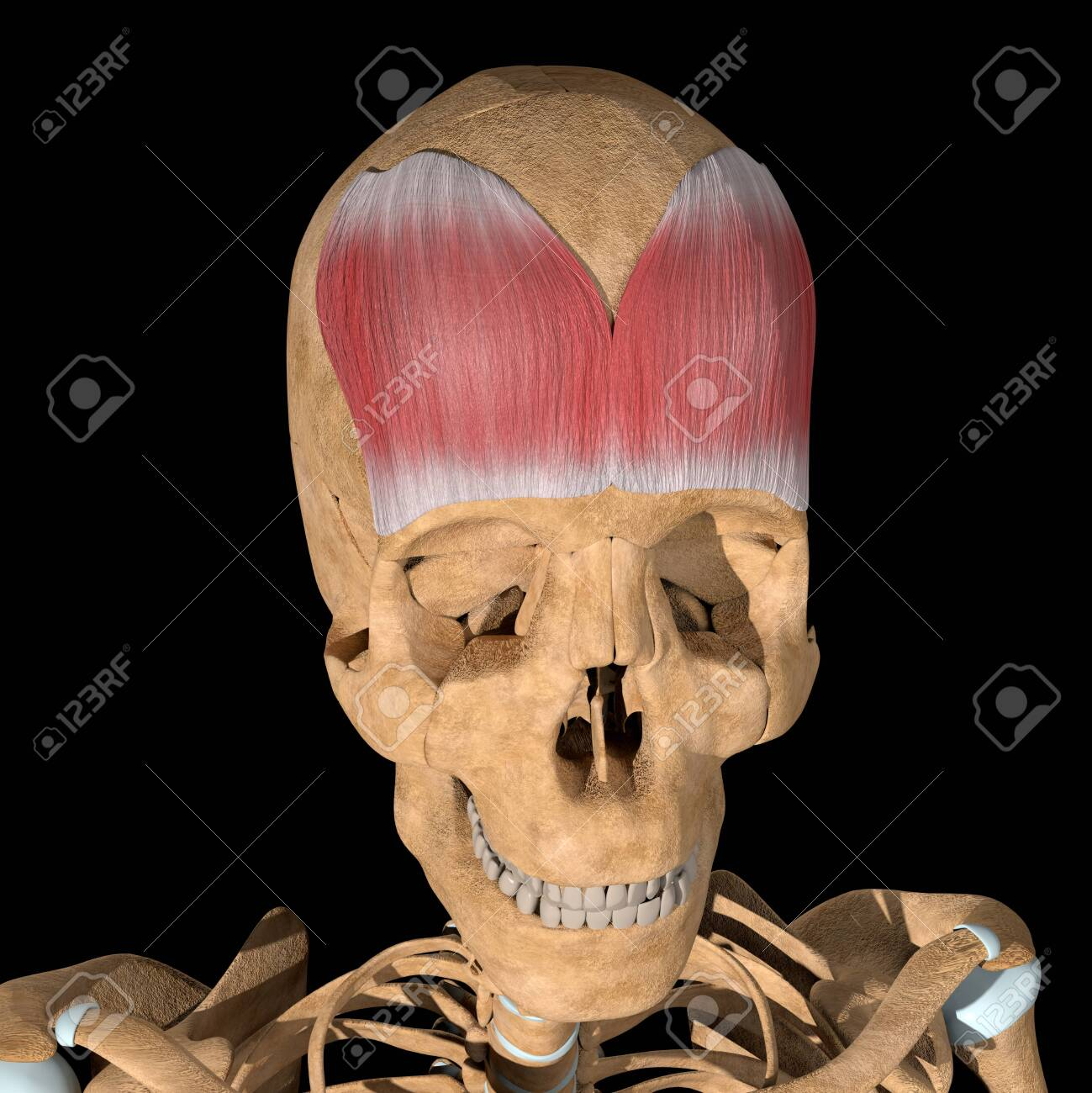This is a 3d illustration of the Frontalis muscle on skeleton - 141461972