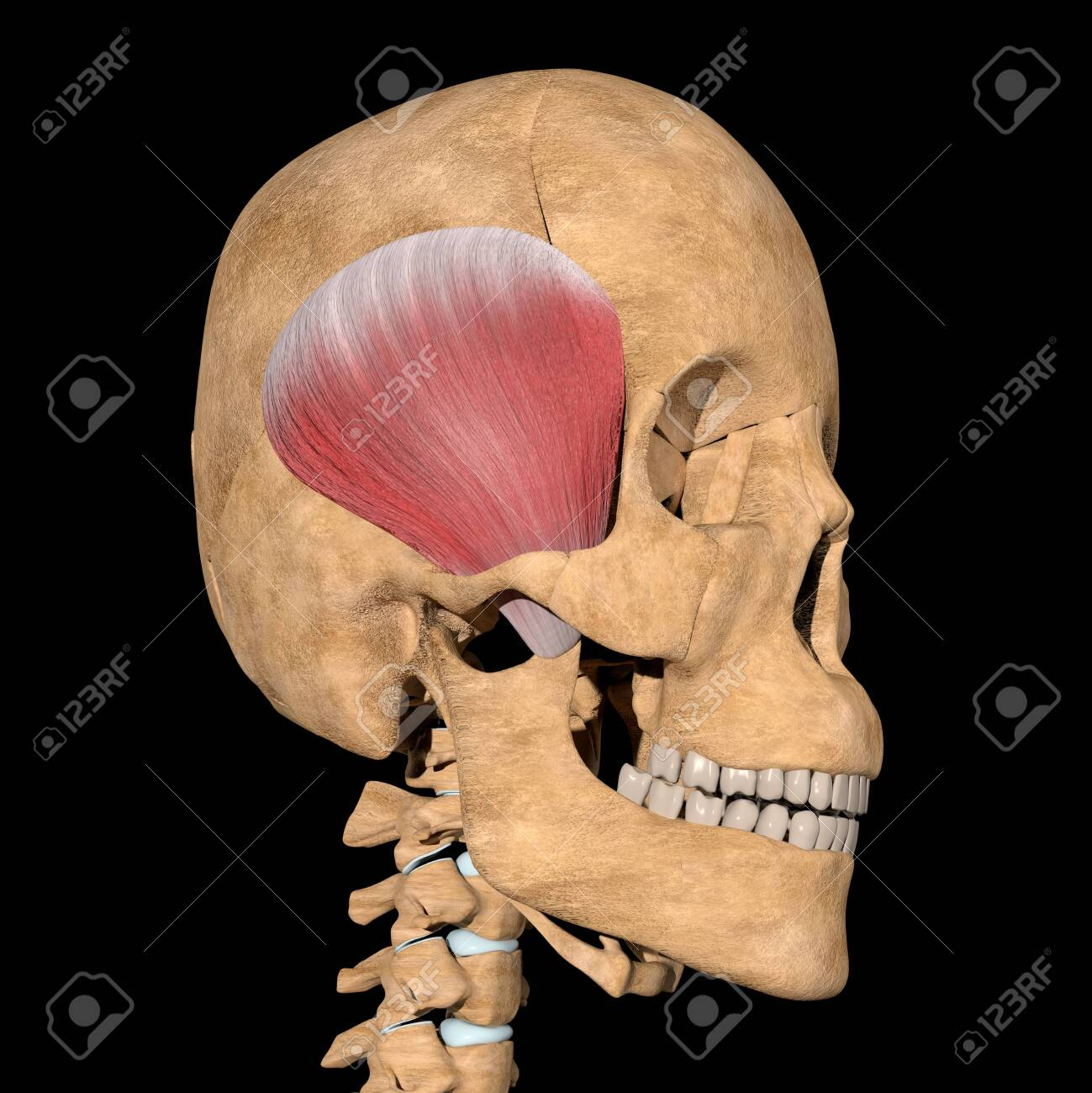 This is a 3d illustration of the temporoparietalis muscles on skeleton - 141461894