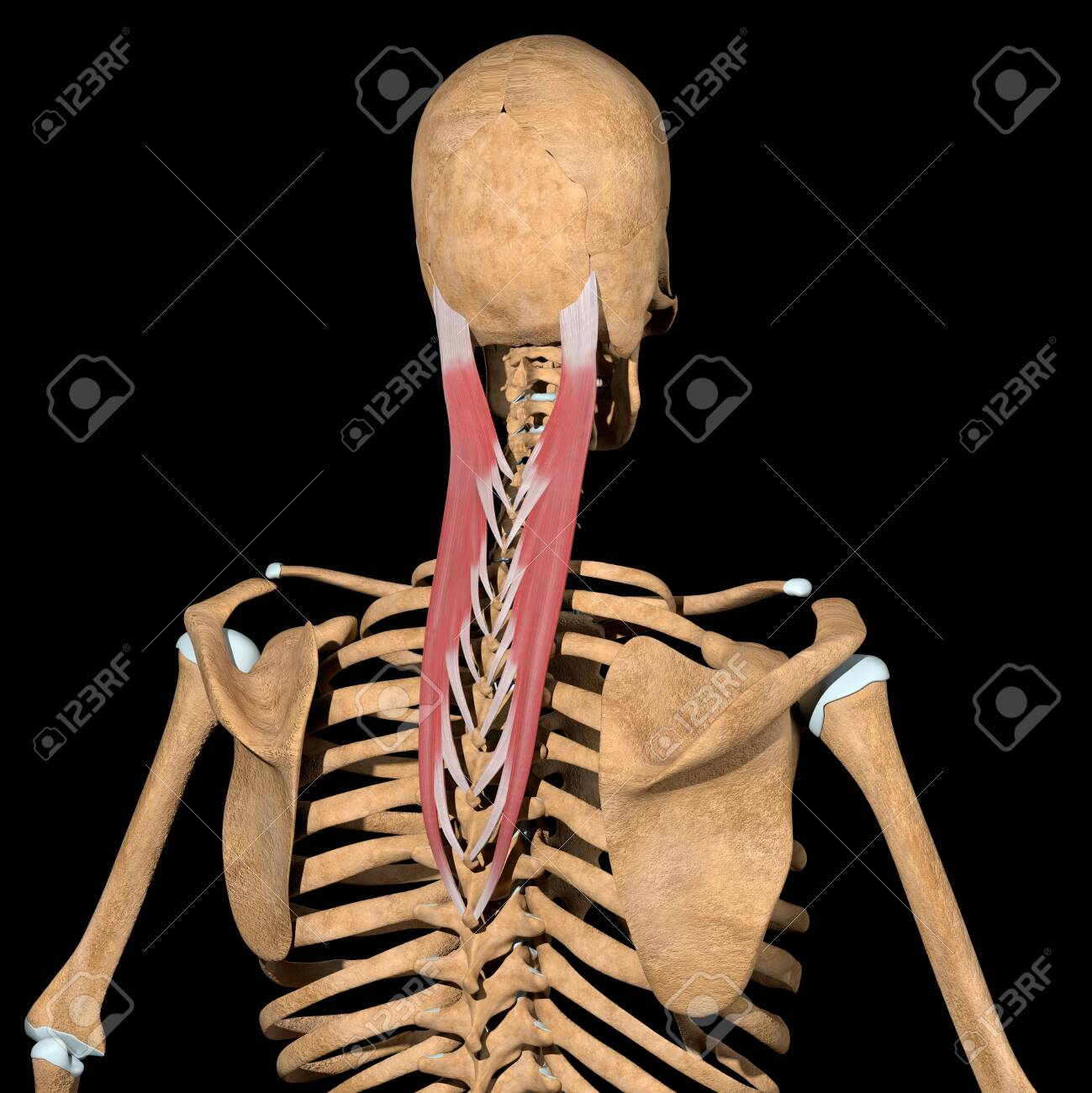 This 3d illustration shows the splenius capitis muscles on skeleton - 142010047