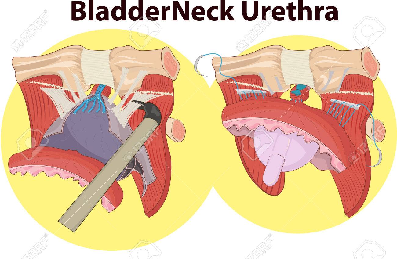 Vector Illustration Of Bladder Neck Anatomy Royalty Free Cliparts ...