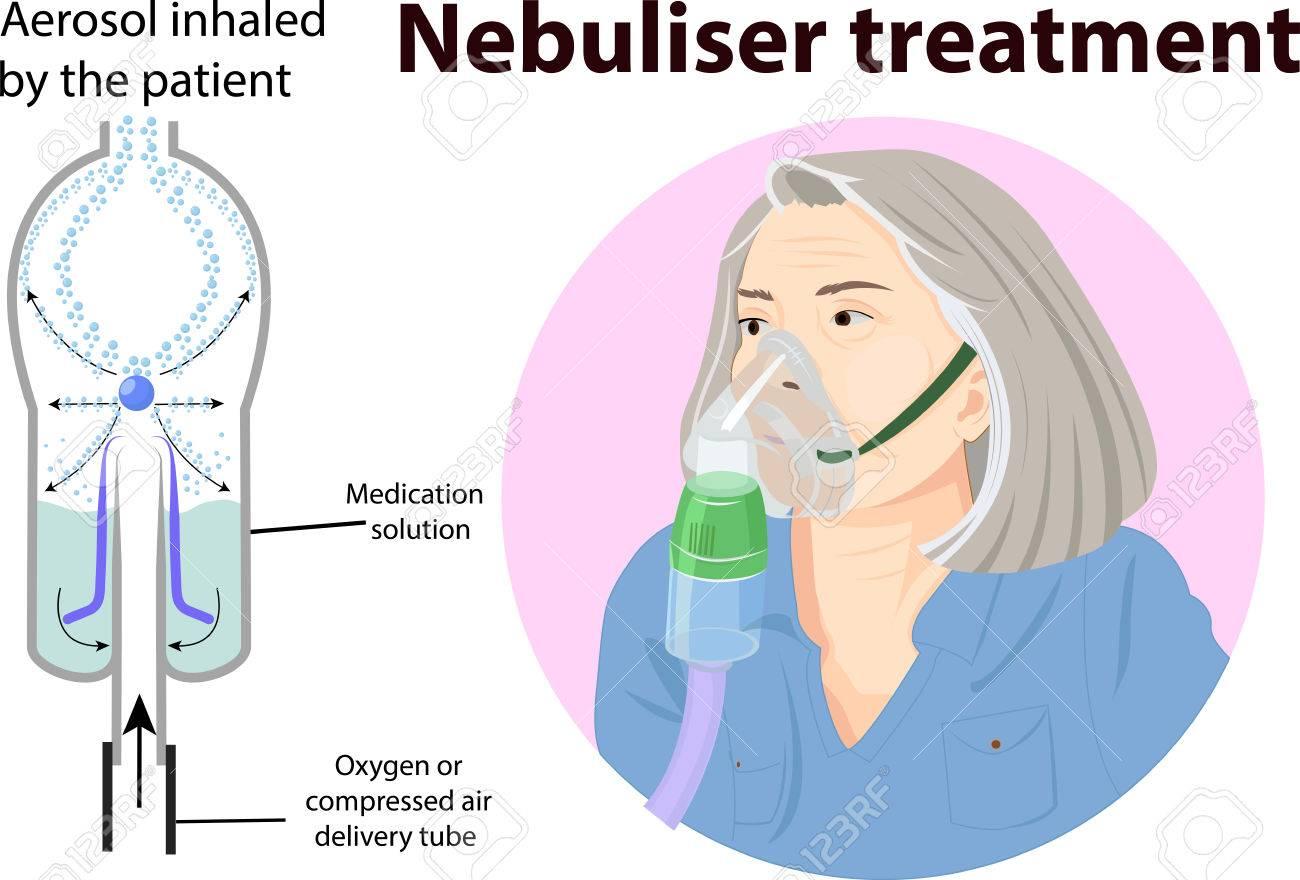 Ilustración Vectorial De La Anatomía Del Tratamiento Nebulizador ...