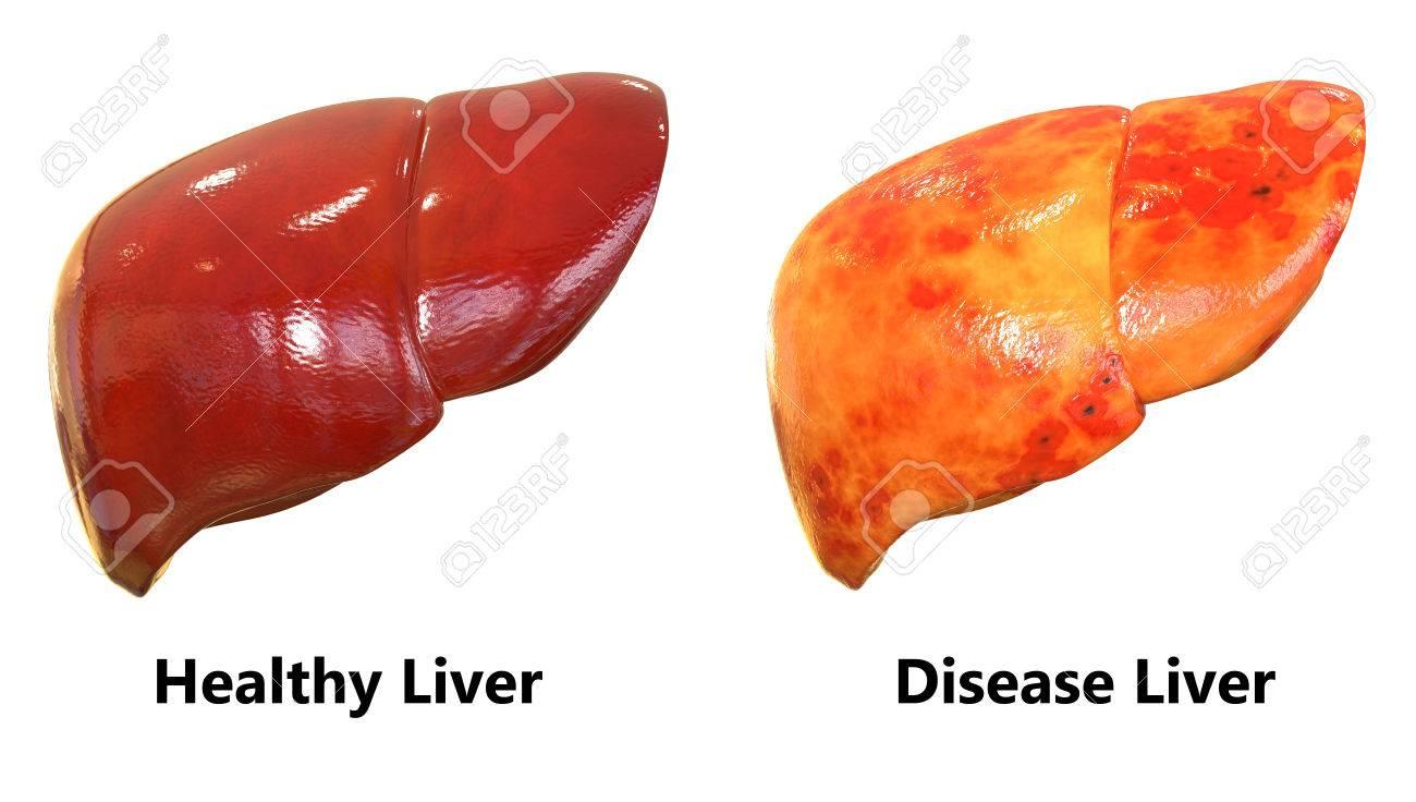 Menschlicher Körper Organe Anatomie (Leber) Lizenzfreie Fotos ...