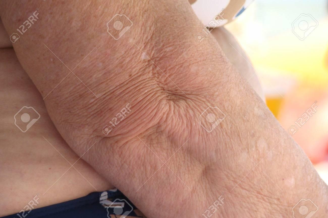 vieillissement de la peau du corps