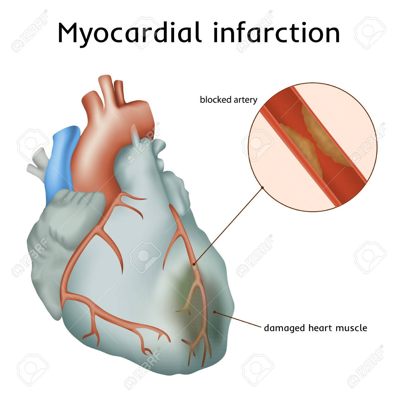 Image result for myocardial infarction