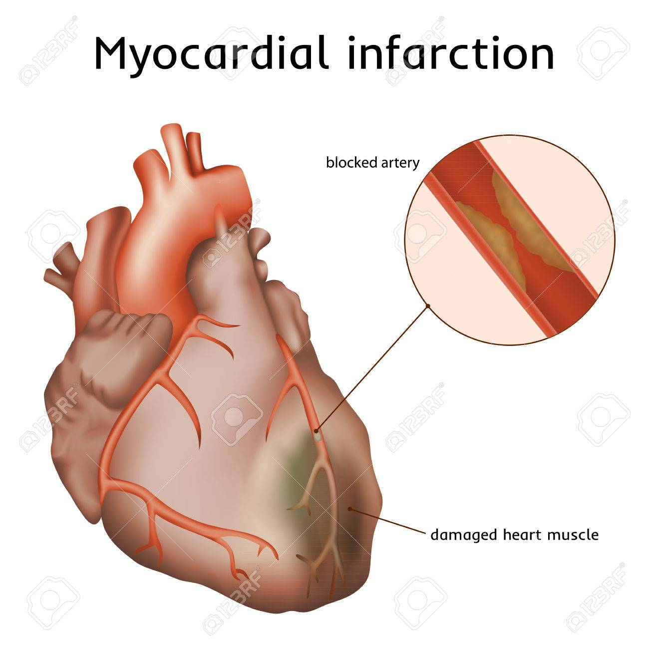 Myocardial Infarction. Heart Attack. Blocked Artery, Damaged ...