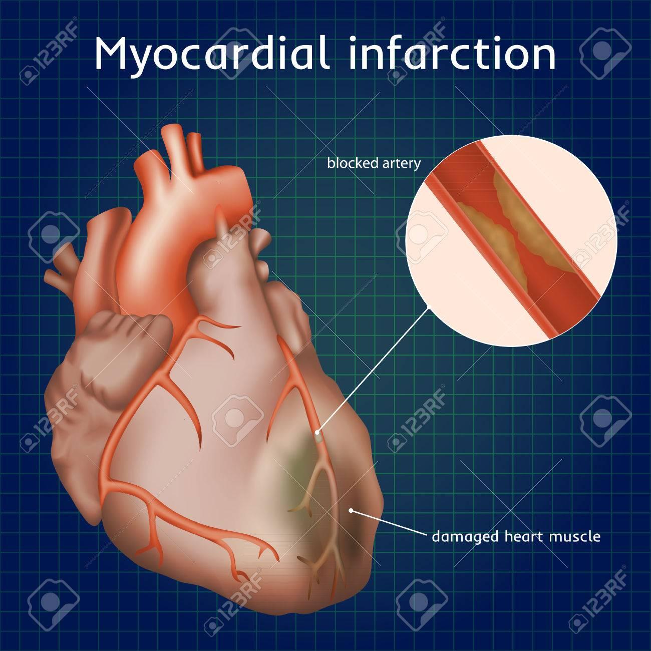 Infarto De Miocardio. Ataque Al Corazón. Arteria Bloqueada, El ...