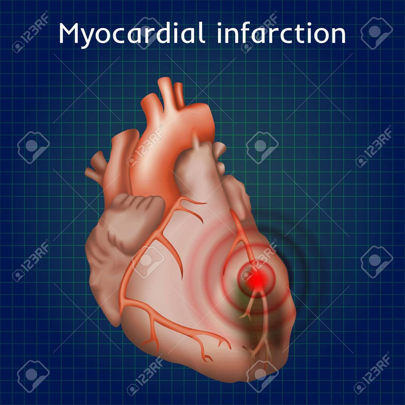 Herzinfarkt. Herzinfarkt, Schmerzen. Geschädigten Herzmuskel ...