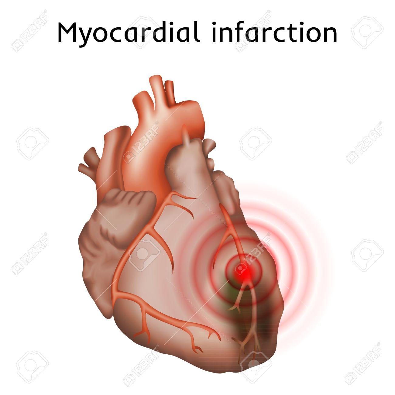 Infarto De Miocardio. Ataque Al Corazón, Dolor. Músculo Cardiaco ...