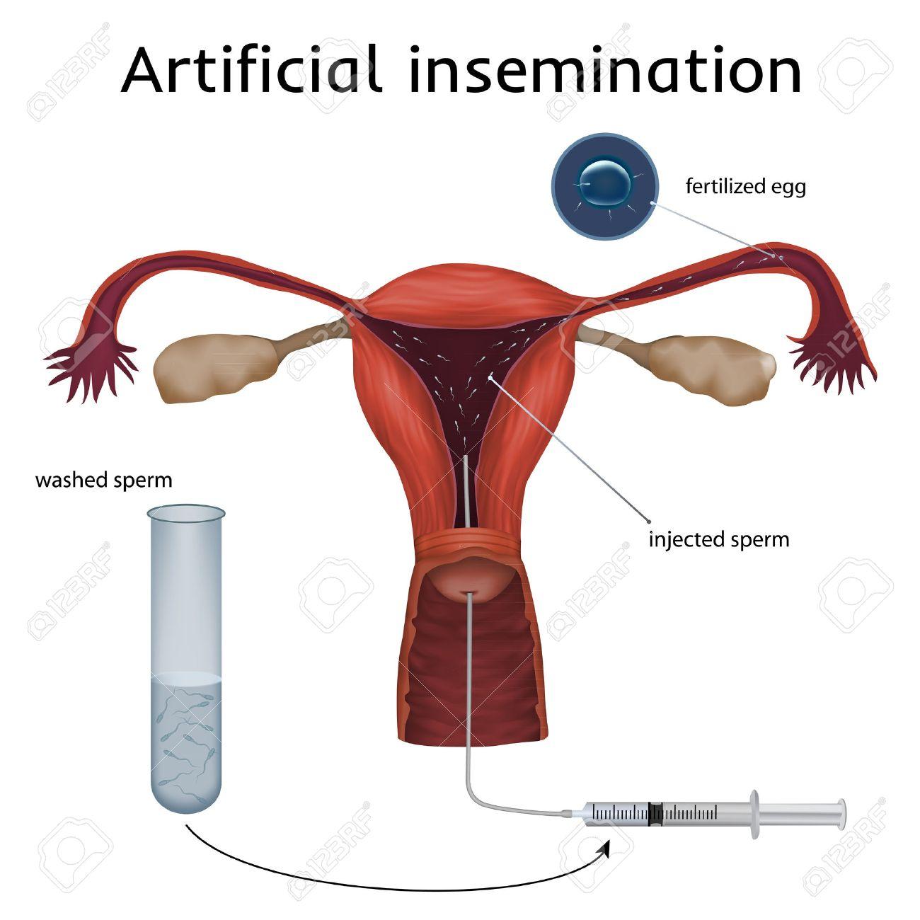 Fertilization pictures of egg sperm — img 4