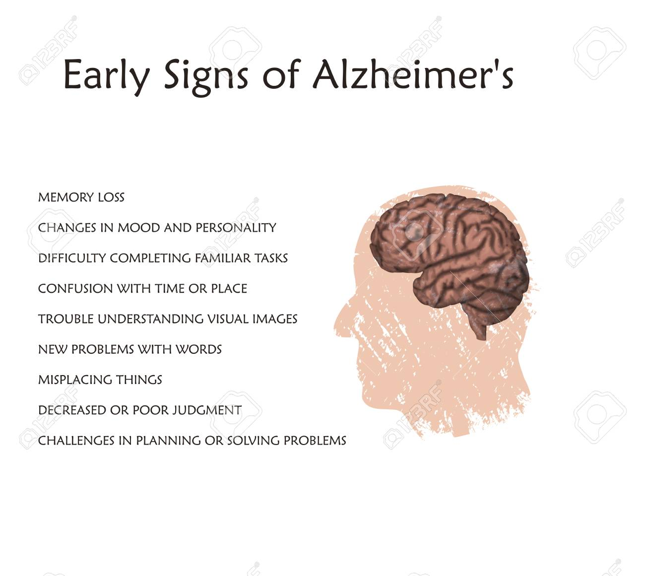 Alzheimer\'s Disease Early Signs Poster, Banner. Vector Medical ...