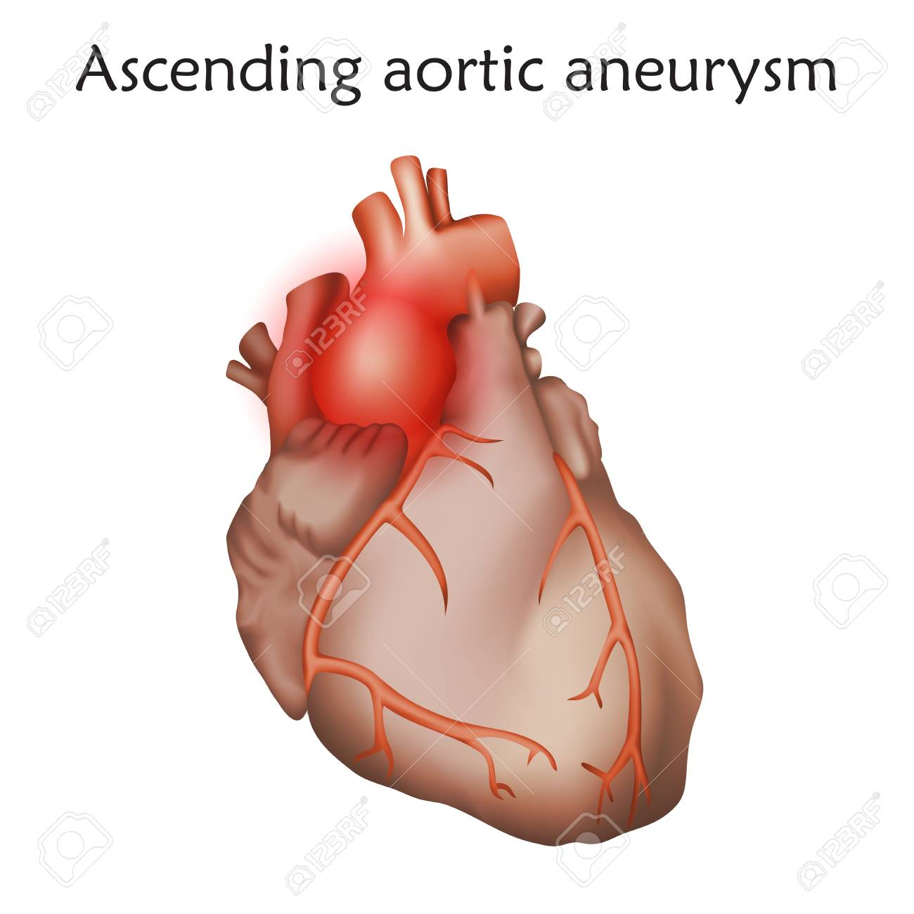 Ascending Aortic Aneurysm With Damaged Heart Muscle For Anatomy ...
