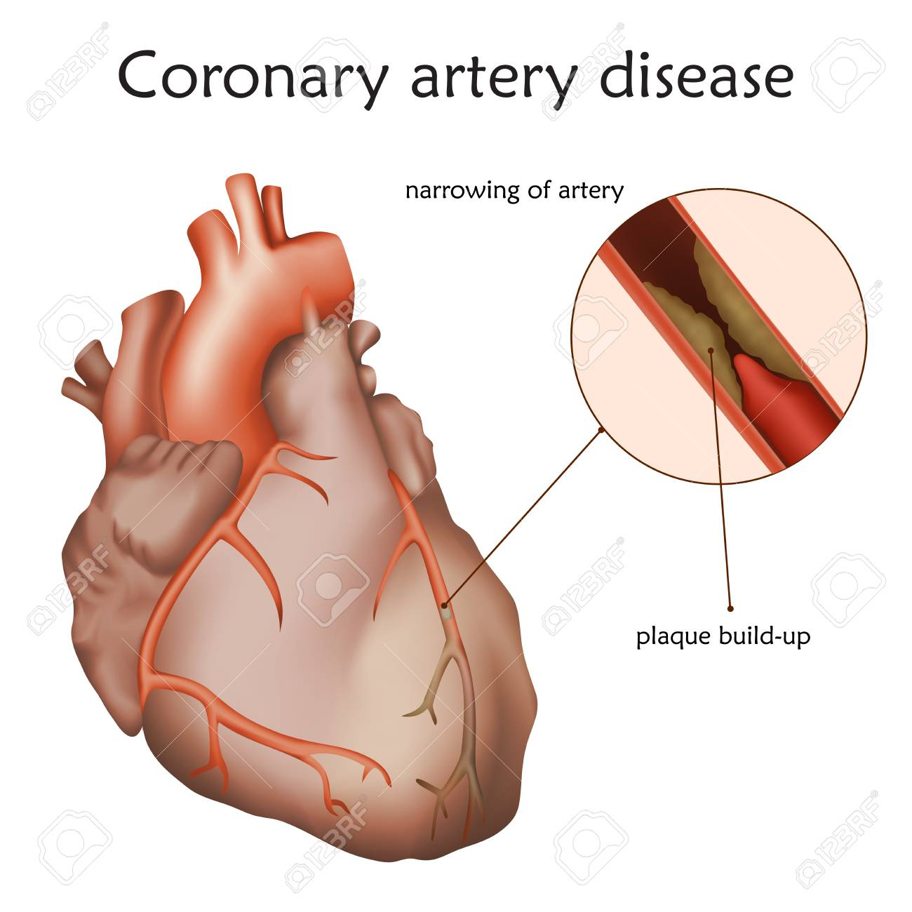 Contemporary Normal Coronary Artery Anatomy Photo - Human Anatomy ...