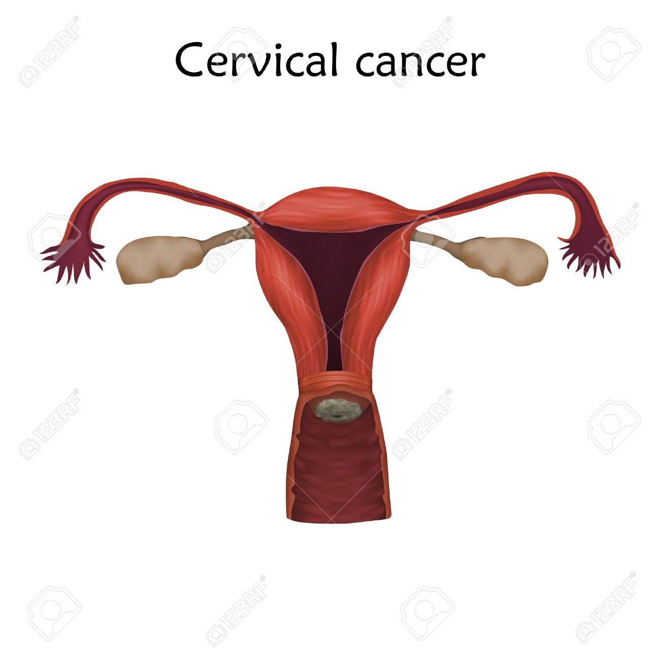 Cervical Cancer Illustration With Human Realistic Uterus And