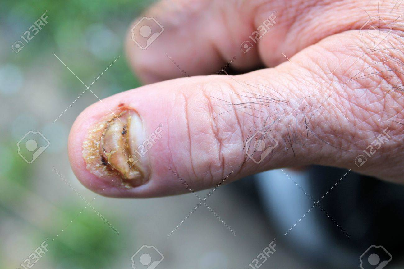 Swollen Finger Without Fingernail Stock Photo, Picture And Royalty ...