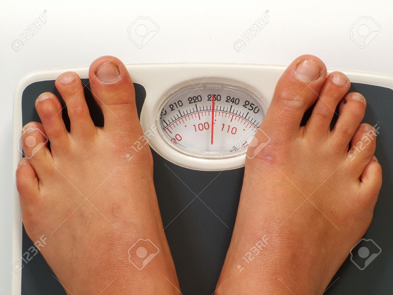 Ugly feet standing on measuring scales with a weight of 230 pounds/104
