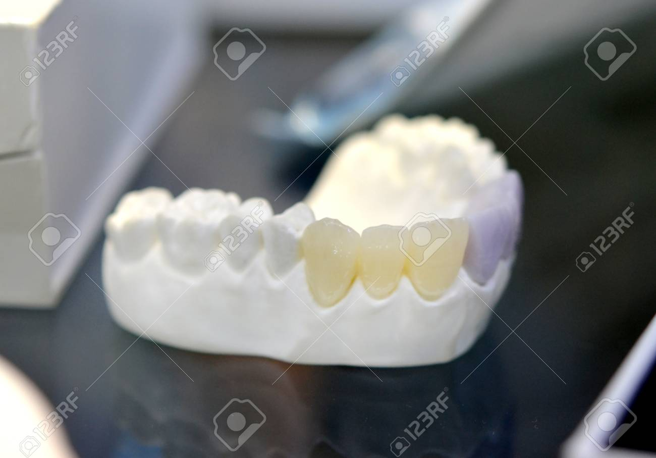Ungewöhnlich Wurzelkanal Anatomie Der Menschlichen Zähne Fotos ...
