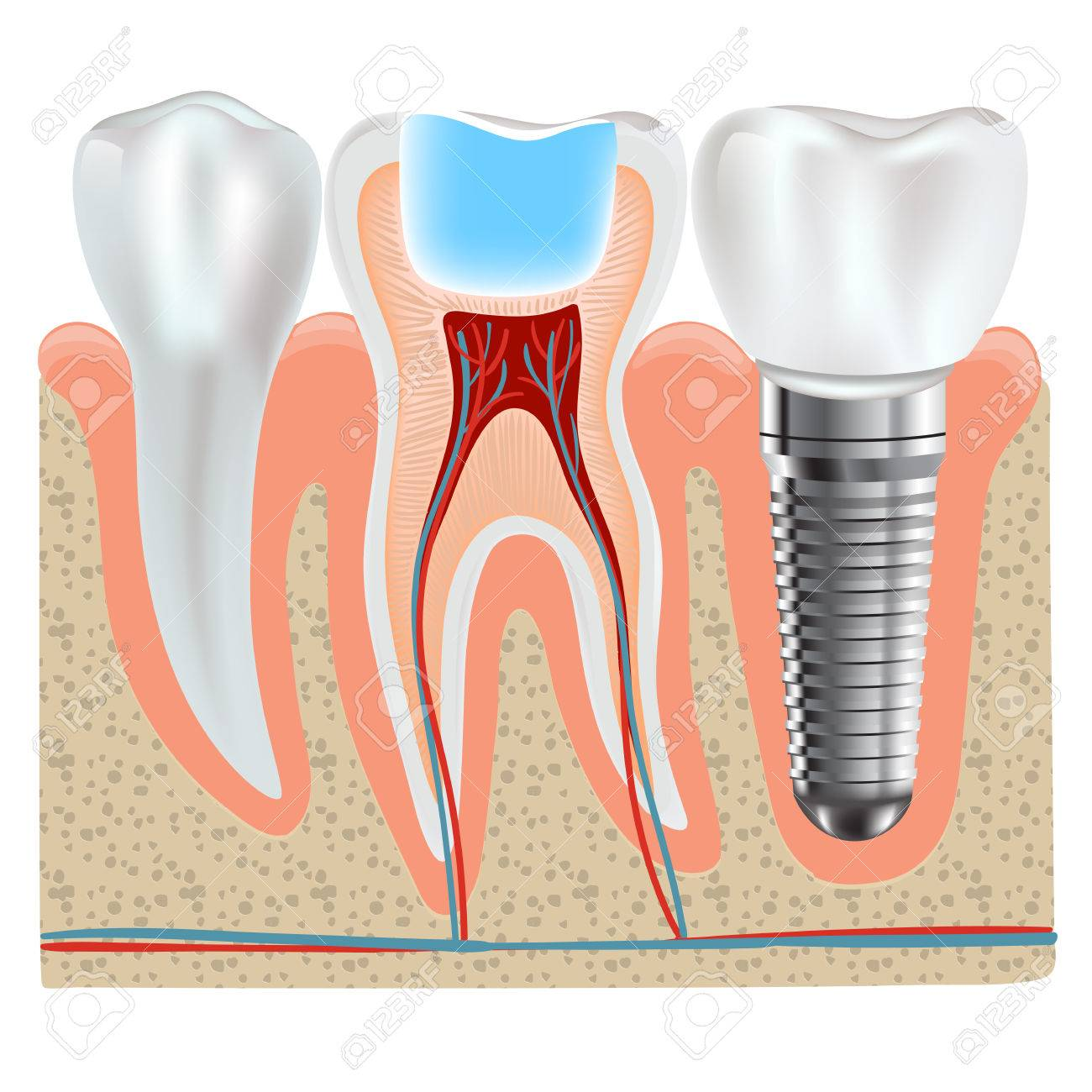Dental Implant And Real Tooth Anatomy Closeup Royalty Free Cliparts ...