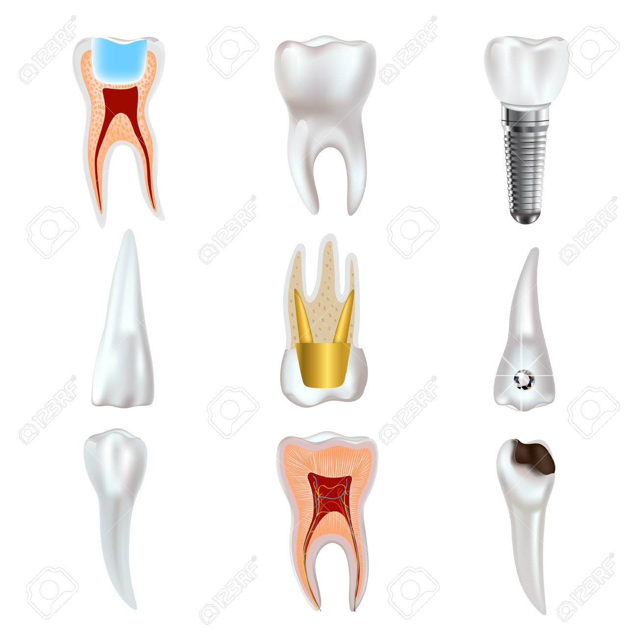 Dental Implant And Real Tooth Anatomy Icon Set. Royalty Free ...
