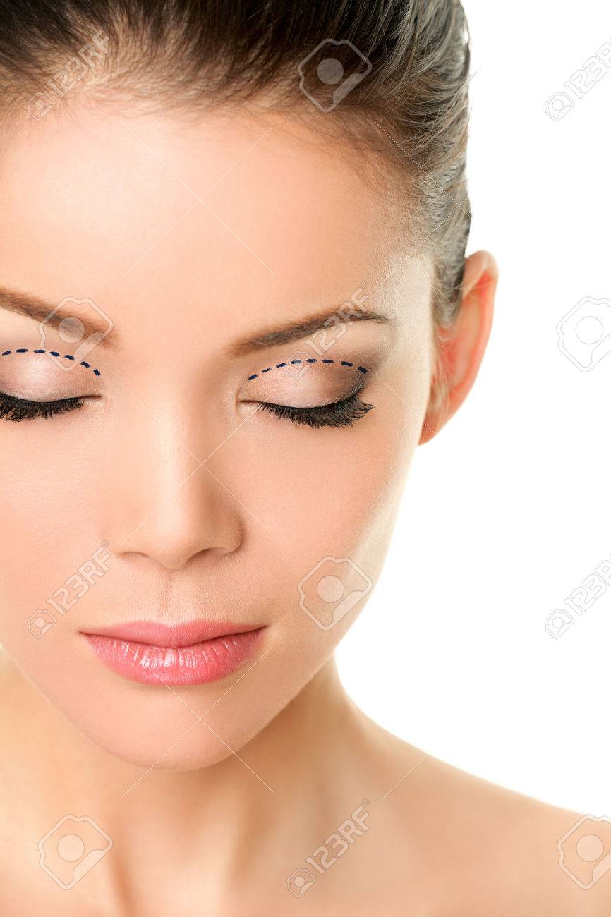Asian monolids plastic surgery concept - woman with correction