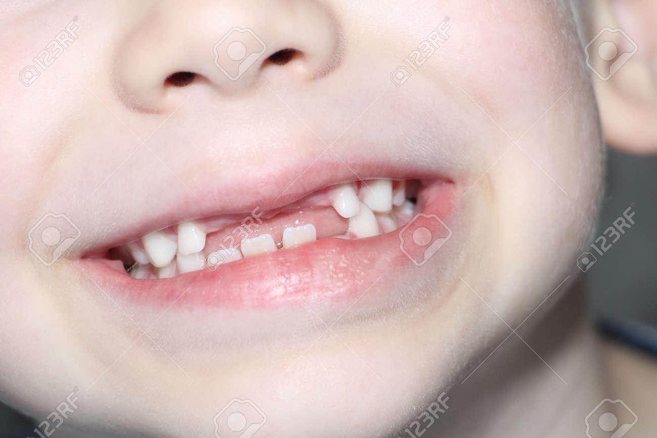 The boy smiles, his milk teeth are visible. Loss of milk teeth. The boy has no upper central teeth. The loss of milk teeth in children. - 150638954