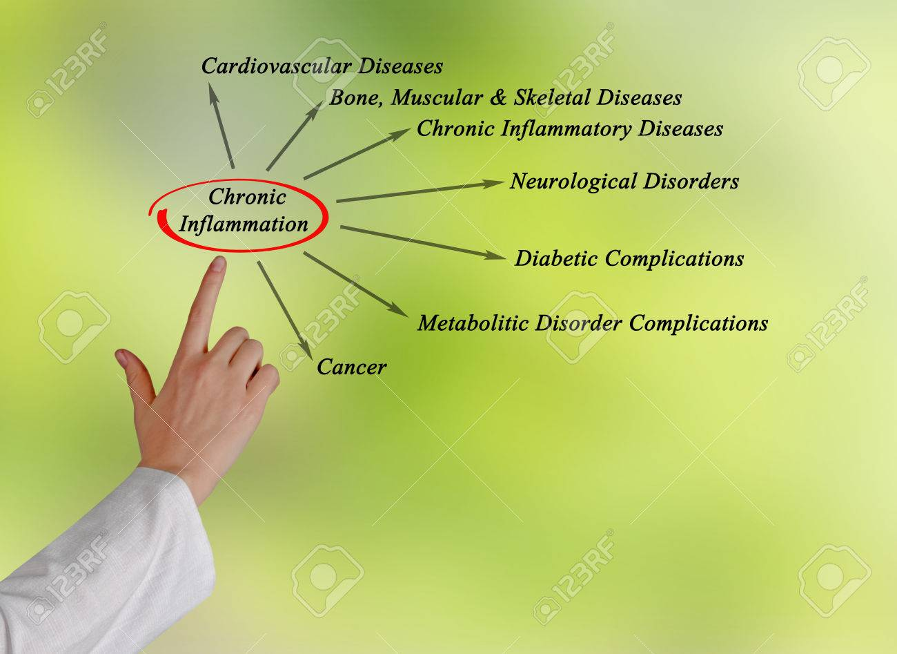 Chronic Inflammation Stock Photo - 40759063