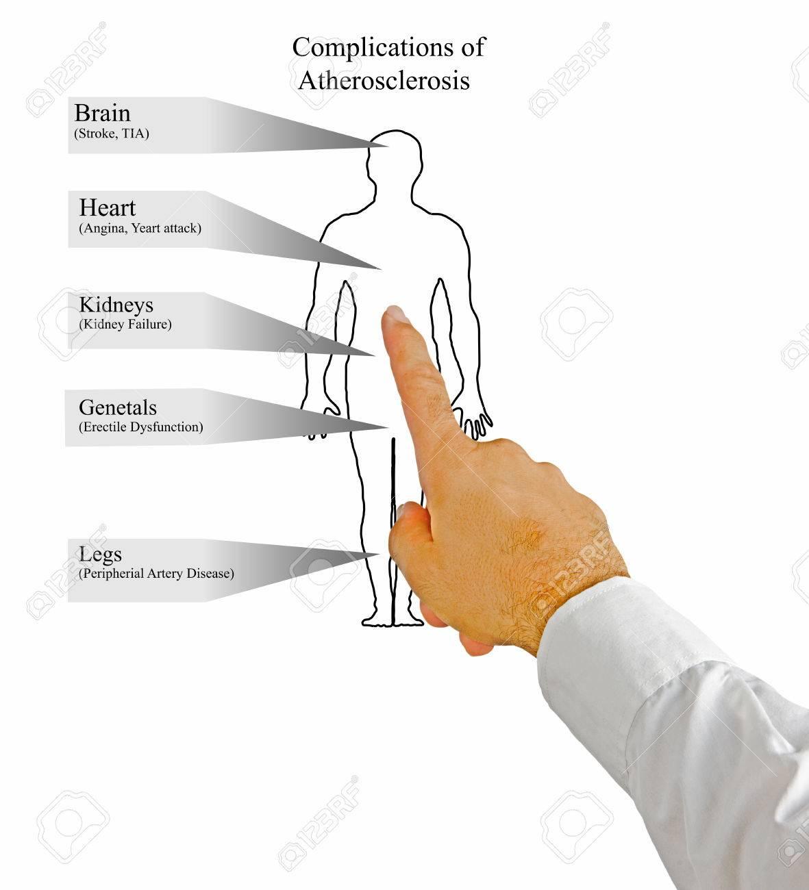アテローム性動脈硬化症 ロイヤ...