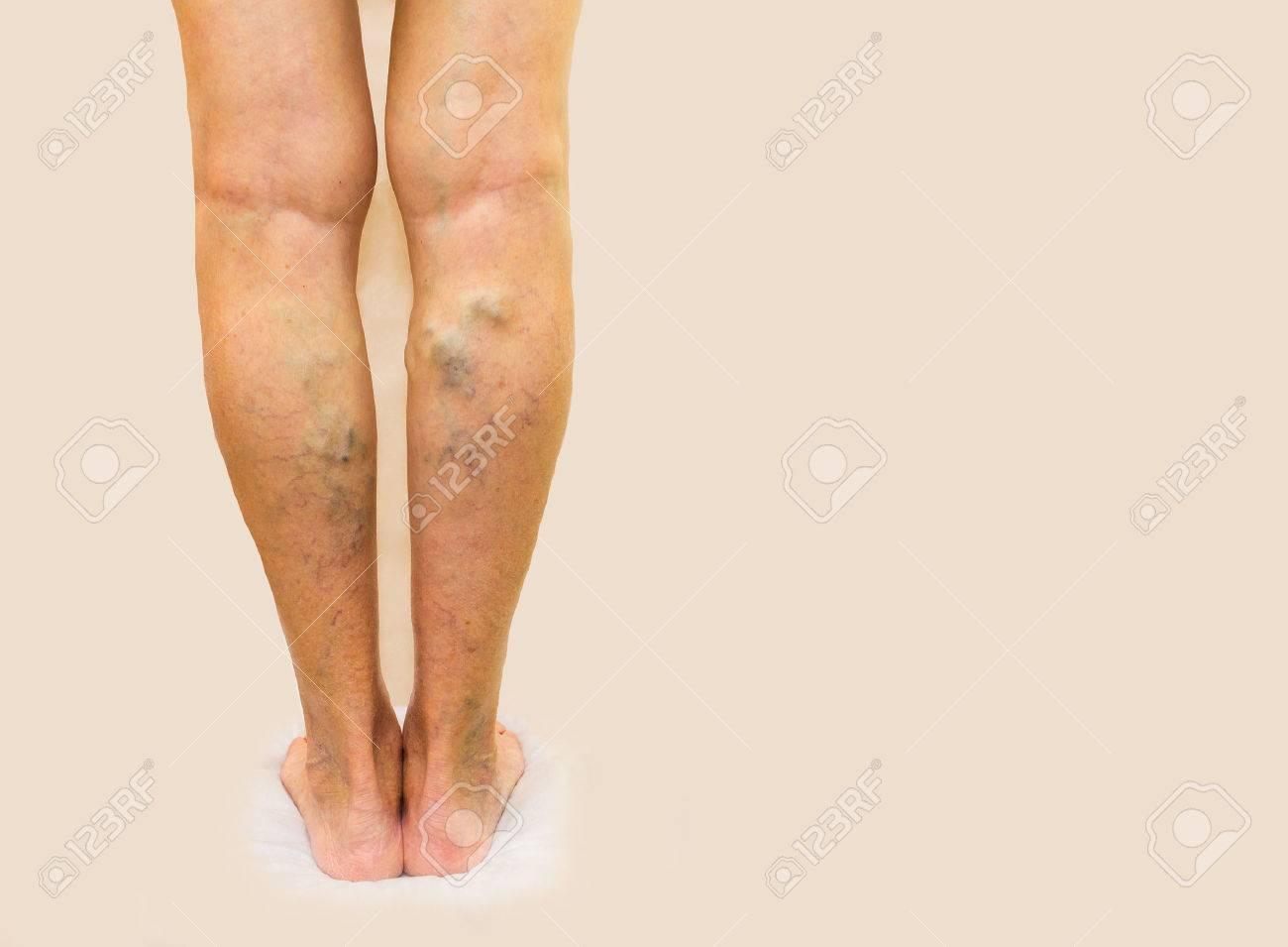 donna de la varicose