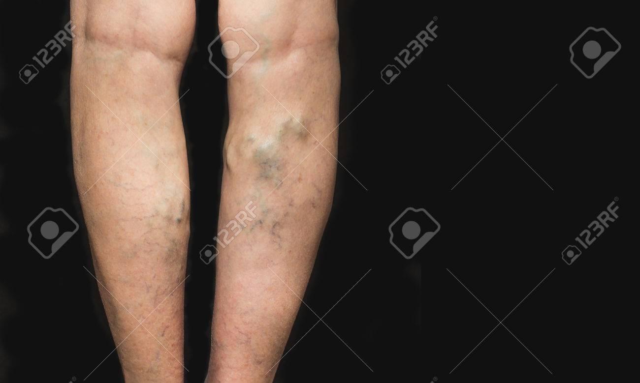 black veins in legs