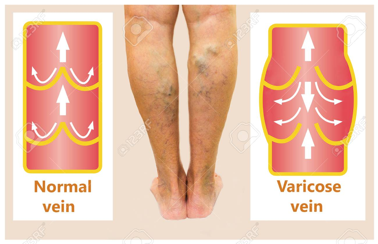 Varicose Veins On A Female Senior Leg Stock Photo, Picture And ...
